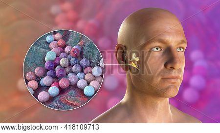 Staphylococcus Aureus Bacterium As A Cause Of Otitis Media. 3d Illustration Showing Purulent Inflamm