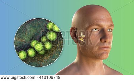 Streptococcus Bacterium As A Cause Of Otitis Media. 3d Illustration Showing Purulent Inflammation Of