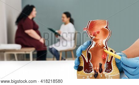 Proctologist Consultation. Doctor Using Rectum Anatomical Model To Analyzing Patients Rectal Disease