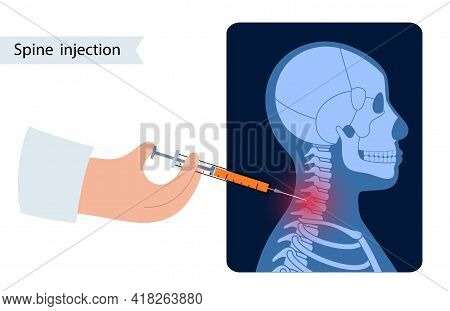 Spine Joint Injection. Pain And Inflammation In The Vertebra. Spinal Arthritis Disease Concept. Medi