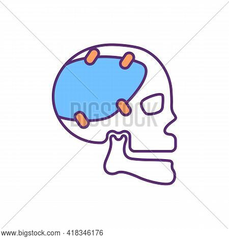 Craniofacial Prosthetic Rgb Color Icon. Reconstructive Surgery. Skull Repairment. Artificial Device.