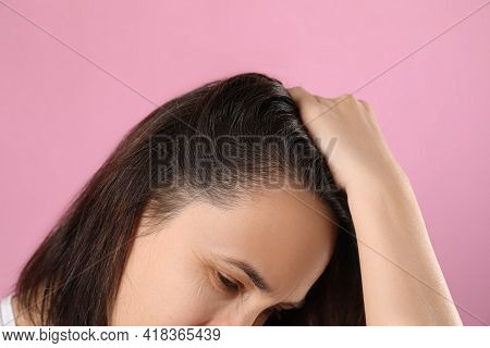 Mature Woman Suffering From Baldness On Pink Background, Closeup