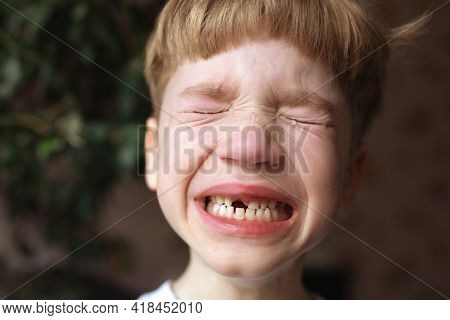 Portrait Of Crying Little Boy With Closed Eyes With Open Mouth Without One Front Tooth. Lost Or Knoc