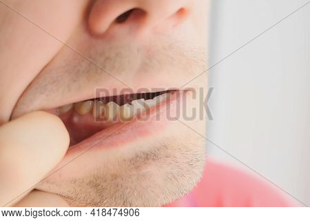 Man Is Showing Tooth In Mouth With Dental Abscess Fistula On Gum, Closeup View.