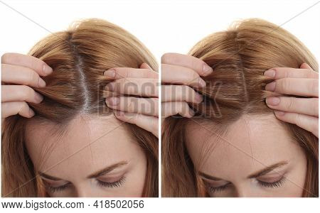 Woman Suffering From Baldness On White Background, Closeup. Collage With Photos Before And After Tre