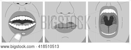 Canker Sore, Cold Sore And Sore Throat. Black And White Vector Illustration Of Aphthous Ulcer, Chron