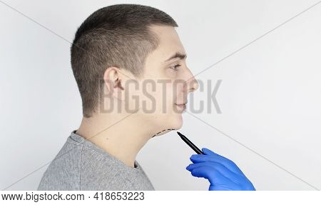 Double Chin Lift. The Doctor Drew An Outline For Plastic Surgery, Mentoplasty Or Face-building. Chin