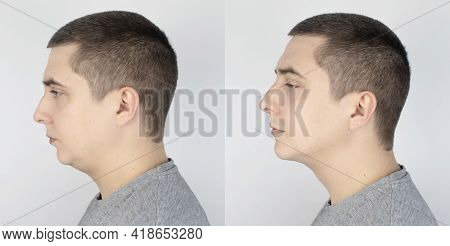 Double Chin Lift. Before And After Plastic Surgery, Mentoplasty Or Face-building. Chin Fat Removal A