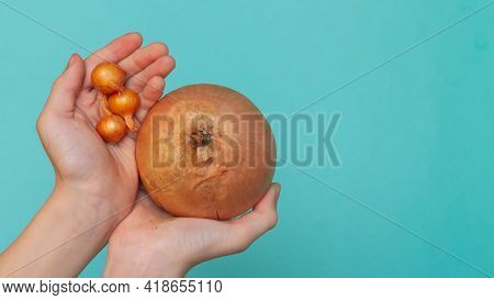 A Very Small And Very Large Onion In The Hands Of A Person, The Concept Of Choice, Difference