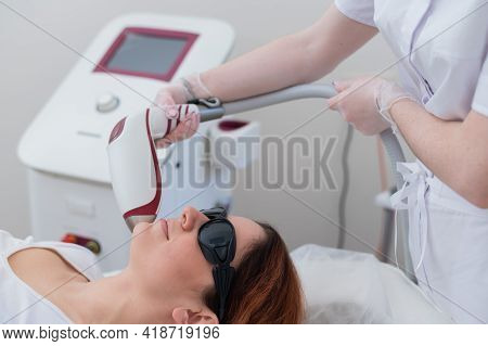 Close-up Of Laser Hair Removal On A Womans Face. The Doctor Removes Unwanted Hair From The Patient A