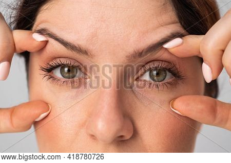 Close-up Portrait Of Caucasian Middle-aged Woman Showing Expression Lines Around Eyes. Signs Of Agin