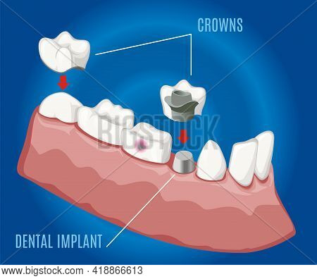 Isometric Professional Prosthetic Stomatology Template With Dental Implant And Crowns On Blue Backgr