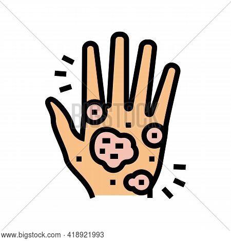 Hand Eczema Color Icon Vector. Hand Eczema Sign. Isolated Symbol Illustration