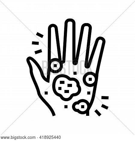 Hand Eczema Line Icon Vector. Hand Eczema Sign. Isolated Contour Symbol Black Illustration