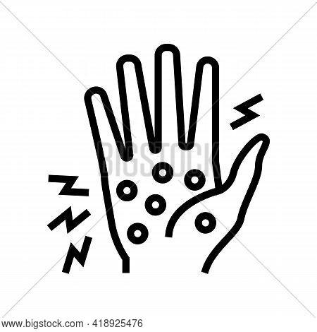 Dyshidrotic Eczema Line Icon Vector. Dyshidrotic Eczema Sign. Isolated Contour Symbol Black Illustra
