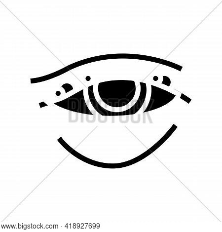 Blepharitis Disease, Redness Of Eyeball Glyph Icon Vector. Blepharitis Disease, Redness Of Eyeball S