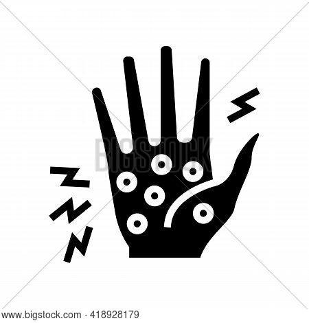 Dyshidrotic Eczema Glyph Icon Vector. Dyshidrotic Eczema Sign. Isolated Contour Symbol Black Illustr