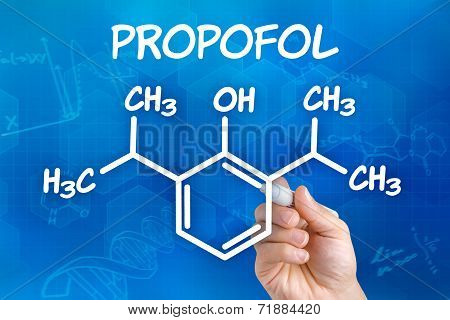 Hand with pen drawing the chemical formula of Propofol