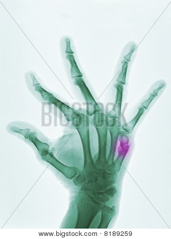 Hand X-ray Showing A Boxer's Fracture In A 57 Year Old Man