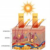 Protected skin with sunscreen lotion. UVB and UVA radiation can not penetrate into the skin. poster