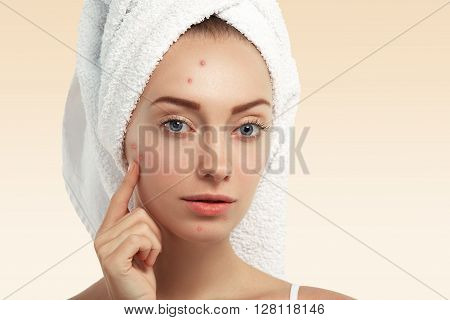 Close up shot of young Caucasian female with blue eyes and acne skin pointing at pimple looking at the camera poster