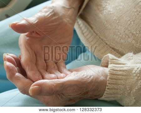 Elderly woman holding arthritic hands open showing crooked fingers