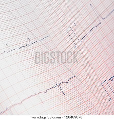 ECG paper bent to examining. macro photo