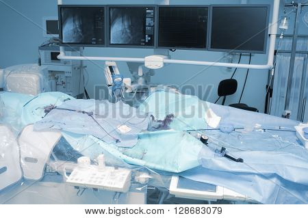 Equipment and tools in the x-ray operating (cathlab). The real situation