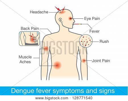 Diagram for health check when have dengue fever symptoms and signs.