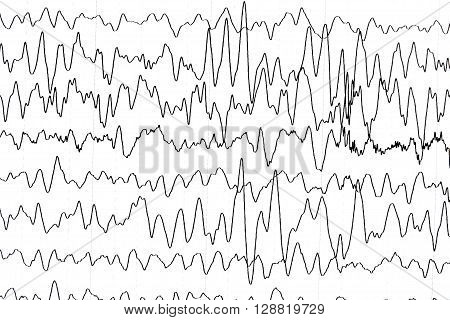 Electroencephalography test that shows electrical activity of the brain.