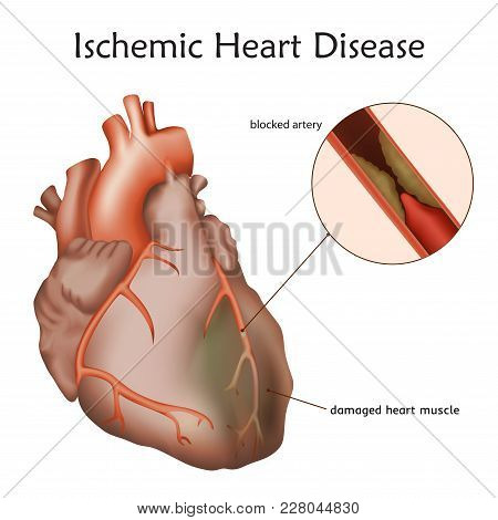 Ischemic Heart Disease. Blocked Artery, Damaged Heart Muscle. Anatomy Illustration. Colorful Image,