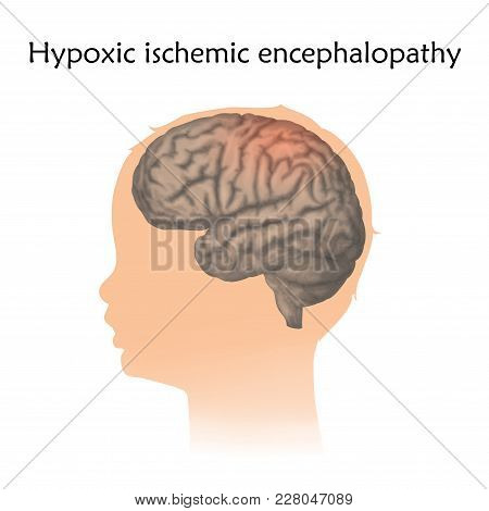 Hypoxic Ischemic Encephalopathy In Infants. Vector Medical Illustration. Kid, Baby, Childhood. White