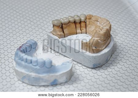The Denture On The Artificial Jaw Lies On A Medical Tray