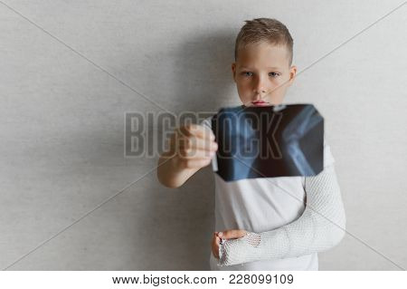 The Boy With A Broken Hand Looks At The X-ray. X-ray In The Hands Of A Sad Boy With A Broken Arm