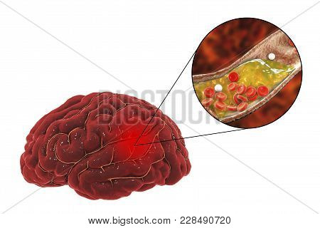 Ischemic Brain Stroke Concept, 3d Illustration Showing Human Brain And Close-up View Of Blood Vessel
