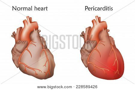 Pericarditis. Inflammation Of The Pericardium. Damaged And Normal Heart Muscles. Anatomy Illustratio