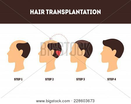Cartoon Hair Transplant Surgery Card Poster Alopecia Transplantation Procedure And Growth Step Conce