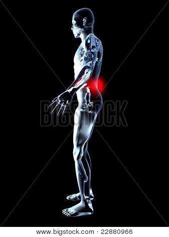 Back Ache - Anatomy