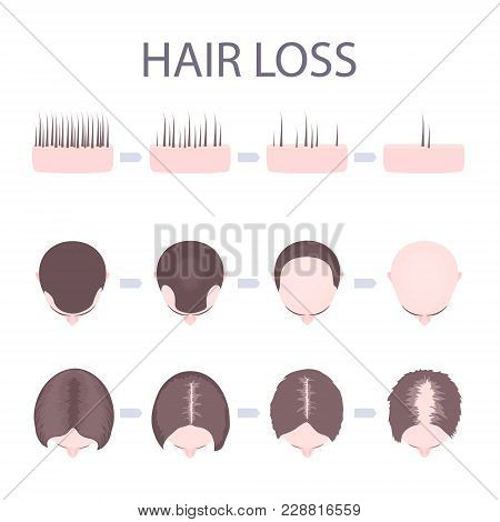 Male And Female Pattern Hair Loss Set. Stages Of Baldness In Men And Women. Number Of Follicles On S