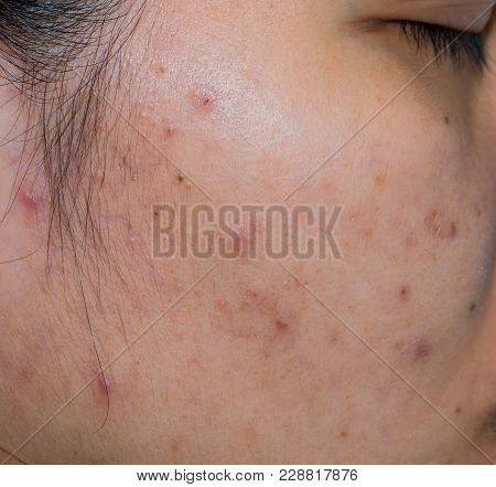 Acne And Acne Spot On Oily Face Skin Of Asian Woman. Concept Before Acne Treatment And Face Laser Tr