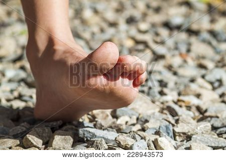 Close-up Of Bare Foot Walking On Stones, Outdoors Activity