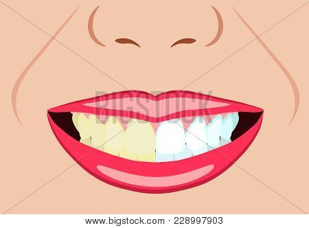 Vector Face Of Girl And Smile With Bad And Ideal White Teeth For Dental And Stomatological Illustrat