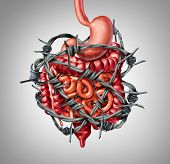Painful digestion IBS or irritable bowel syndrome and intestine pain or Intestinal discomfort inflammation problem or constipation as barbed wire with 3D illustration elements. poster