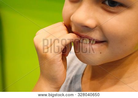 Boy Conceived Some Cunning And Bit Finger. White Fair-haired Boy Of Slavic Appearance With Furtive L