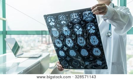 Brain Disease Diagnosis With Medical Doctor Seeing Magnetic Resonance Imaging (mri) Film Diagnosing
