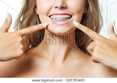 Orthodontic Treatment. Dental Care Concept. Beautiful Woman Healthy Smile Close Up. Closeup Ceramic