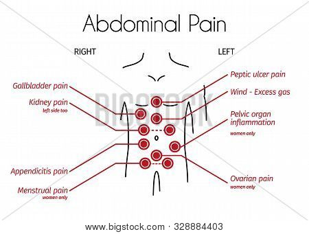 Abdominal Pain Types Linear Infographic. Young Person With Red Spots On The Tummy Shows Different Ty
