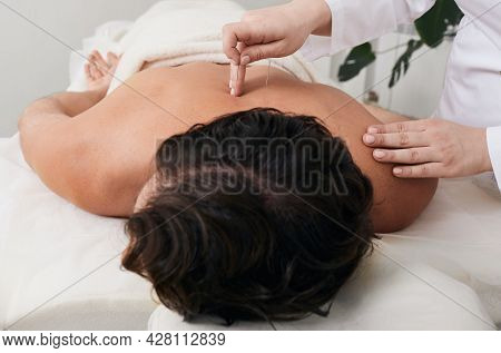 Acupuncture, Traditional Chinese Medicine, Alternative Medicine, Reflexology, Acupressure