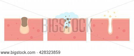 Cleaning Blackheads Process Flat Illustration. Clogged Pores Removal, Skin Cleaning Foam, Skincare.