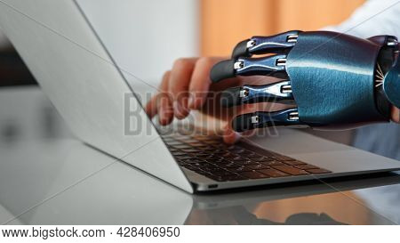 Programmer man hands with artificial bio prothesis type on laptop keyboard on table under bright sunlight in office extreme closeup